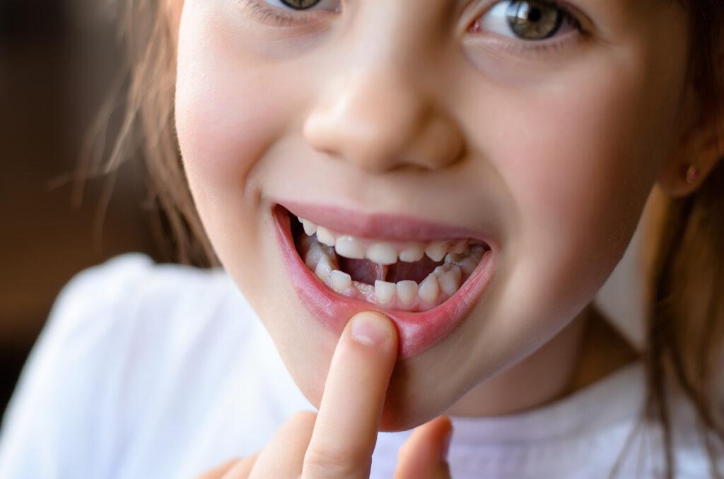 Mädchen schaut lächelnd in die Kamera und zeigt auf Ihre Zähne